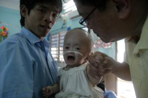 One of the Go Vap babies with pronounced hydrocephalus