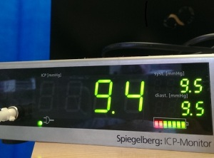 An ICP monitor....during one of the rare times my pressures were reading as normal.